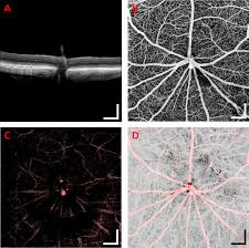 imaging laser induced choroidal neovascularization in the rodent