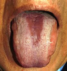Pictures Of Oral Cancer On Roof Of Mouth by Median Rhomboid Glossitis Wikipedia