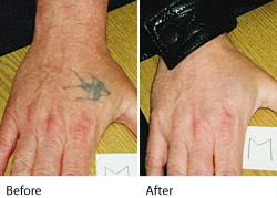 q switched ruby tattoo removal leeds wakefield west yorkshire