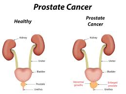 Pumpkin Seed Oil Prostate Infection by 14 Surprising Home Remedies For Prostate Cancer Organic Facts