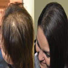 thin hair after extensions thinning hair extensions 2018 forensicanth com forensicanth com