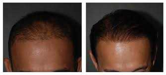 hair transplant costs in the philippines hair transplants gone wrong would you marc medic hair