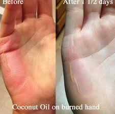 Rug Burn Treatment Coconut Oil For Burns Is It Good To Heal Treat 2nd Degree Burns