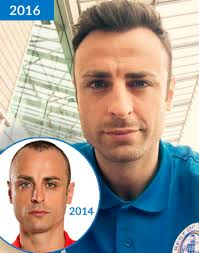 paddy mcguinness hair transplant football fans speculate about dimitar berbatov s hair loss