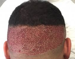 african american hair transplant afro hair transplant westminster clinic