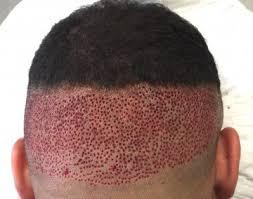hairline restoration for black men afro hair transplant westminster clinic