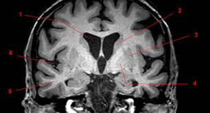 Sagittal Brain Mri Anatomy Basal Ganglia Overview