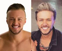does kyle wear hair extensions geordie shore s kyle christie s had 11 000 worth of surgery and
