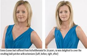 hair styles for trichotellamania hair extensions now hair loss later