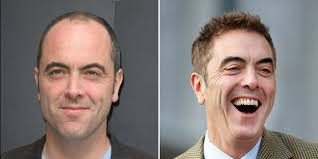 coronation street hair transplants james nesbitt says his hair transplant helped his career