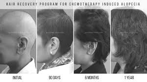 hair growth after chemo pictures accelerate hair growth after chemo national hair loss