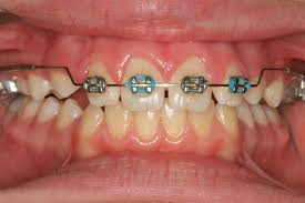 nickel free braces braces non extraction straightwire technique non extraction