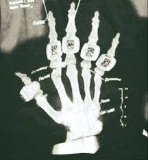 Xray Meme - tom brady s hand injury 5 fast facts you need to know heavy com