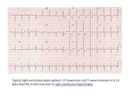 strain pattern ecg meaning interpretation of ecg in pulmonary disease