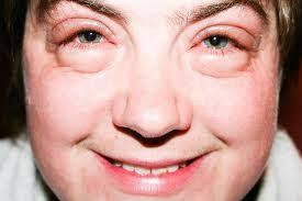 symptoms of puffy eyes