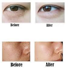 portable laser freckle dark spot skin mole removal machine face