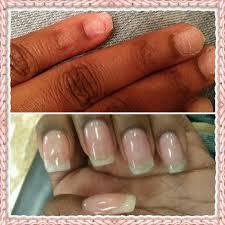 natural nails vs acrylic black health