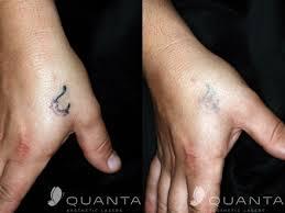 tattoo removal utah cost pico laser picosecond laser tattoo removal prima pico series