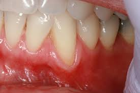 Roof Of Mouth Cancer Images by Gum Grafting Lyndhurst Oh