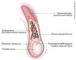 ont i pungen testikelcancer medibas