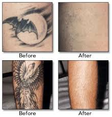 15 best tattoo removal before and after images on pinterest