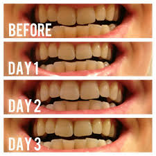 teeth whitening archives the workout mama