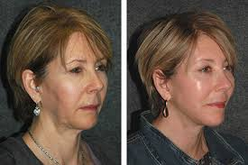 hairstyles for women with sagging necks mini face lift face lift