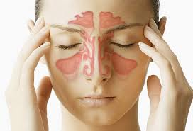 can sinus infection cause dizziness light headed sinus infection pictures symptoms causes and treatment