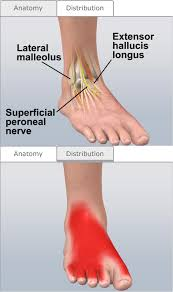 Top Foot Anatomy Top Of Foot Tingling Complete Treatment Guide