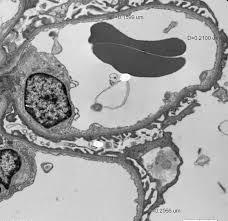 minor degree of persistent microscopic hematuria in potential