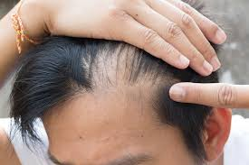 types of hair lines hair loss in teens causes signs and how to treat it naturally