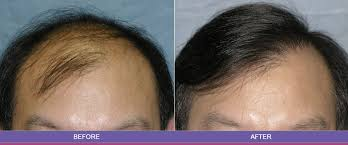 dhi hair transplant reviews 9 best hair transplant centers in chandigarh styles at life