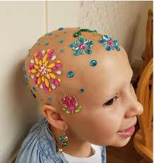 Hair Extensions Tampa by Embracing Alopecia Using Creative Designs Custom Hair Tampa Bay