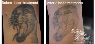 tattoo removal london tattoo removal