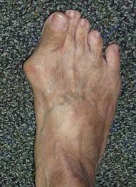 bunions sw yung orthopaedic pte ltd