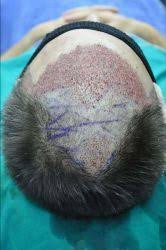 prescreened hair transplant physicians am i a candidate for follicular unit extraction fue hair