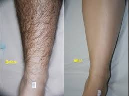 pubic hair on thigh how to remove unwanted hair permanently at home naturally