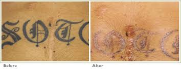 q switch laser tattoo removal before and after laser hair