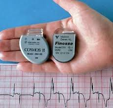 pacemaker chambre le pacemaker