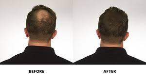 Shoo Hair and shoulders shoo hair loss best hair 2017