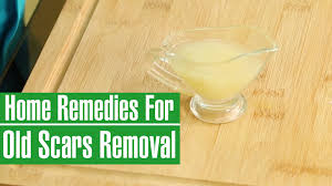 Home Remedies For Small Burns - how to remove old scars from legs u0026 face natural scar removal