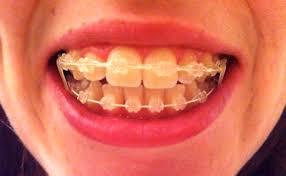 decorative braces for teeth nice home design fresh in decorative