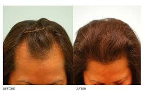 female recede hairline hairstyles with bangs female hairline lowering dallas receding hairline treatment plano tx