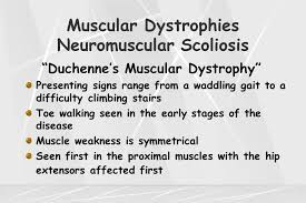 muscular dystrophies neuromuscular scoliosis ppt video online