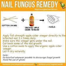 best 25 nail fungus ideas on pinterest toe fungus remedies