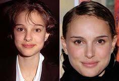 laura bell bundy nose job celebrity plastic surgery pinterest