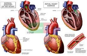 Heart Anatomy Arteries Normal Anatomy Of The Heart Vs Heart With Blood Vessel Damage