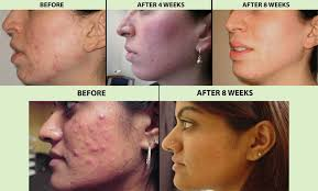 blue and red light therapy for acne blue light acne treatment before and after