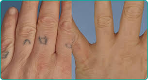 indian ink tattoo removal bristol laser centre