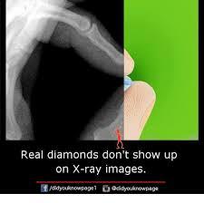 Xray Meme - 25 best memes about x ray x ray memes
